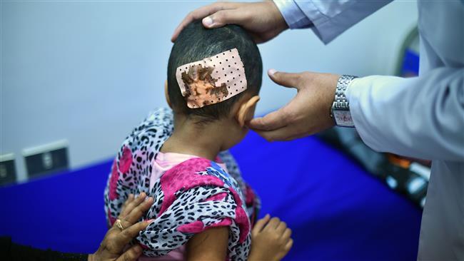 Korban Anak Kecil Yaman