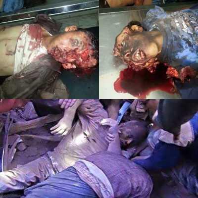 ARN00120040015113124_Saudi_Nodai_Malam_Jumat_Dengan_Pembunuhan_Anak-Anak_Yaman