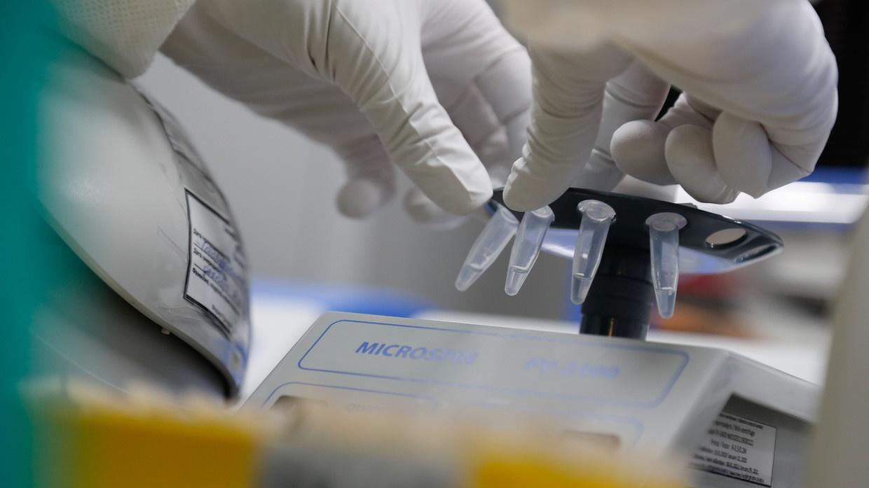 Rusia Segera Lakukan Vaksinasi Anti-Coronavirus MassalRusia Segera Lakukan Vaksinasi Anti-Coronavirus Massal